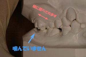 矯正歯科 名古屋市 歯並び