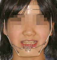 矯正歯科 歯列矯正 名古屋市 平針